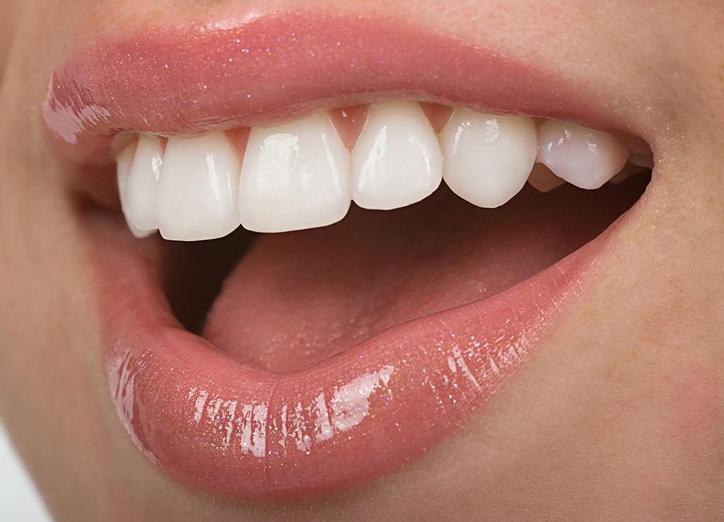 Imagen estética dental clínica navarro en Gavà