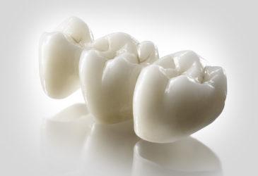 estética dental en Gavà y Castelldefels