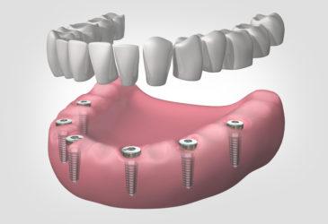 implantes dentales en Gavà y Castelldefels