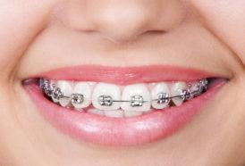 ortodoncia en Gavà y Castelldefels